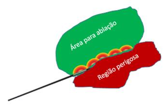 Radiofrequencia - Tireoide