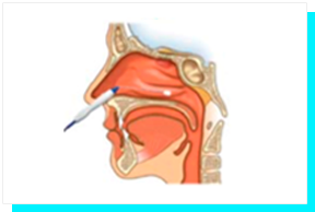 Tratamento de Ronco e Apneia - Conchas Nasais