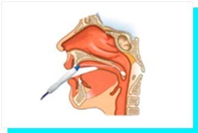 Tratamento de Ronco e Apneia - Palato Mole