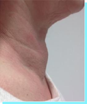Tireoide - Tecnologia para Tratamento